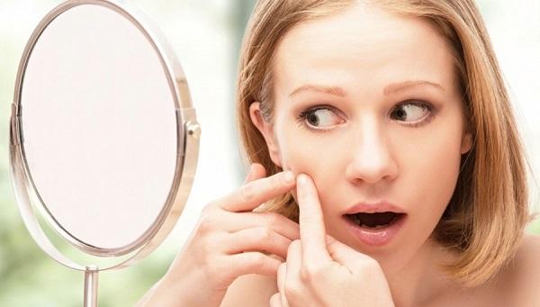 Chăm sóc da bị mụn nhờn ngứa