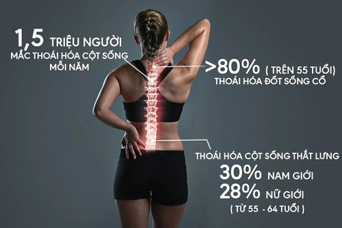 Đau vùng thắt lưng có thể là dấu hiệu của thoái hóa cột sống