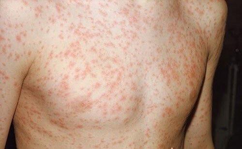 Phát ban là dấu hiệu thường thấy của sốt siêu vi
