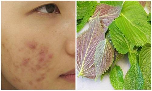 Uống nước lá tía tô có tác dụng trị mụn làm đẹp da