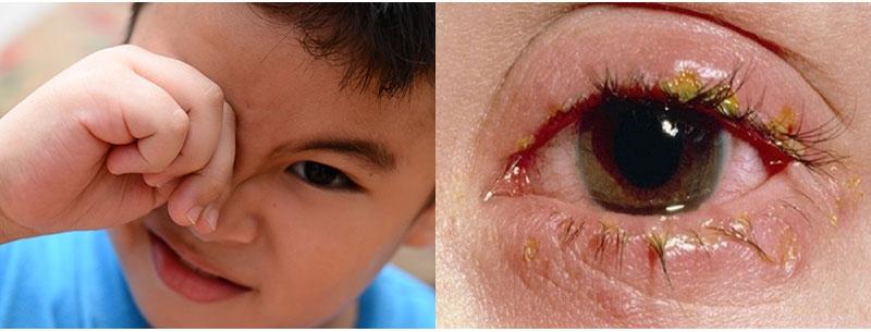Bệnh đau mắt hột